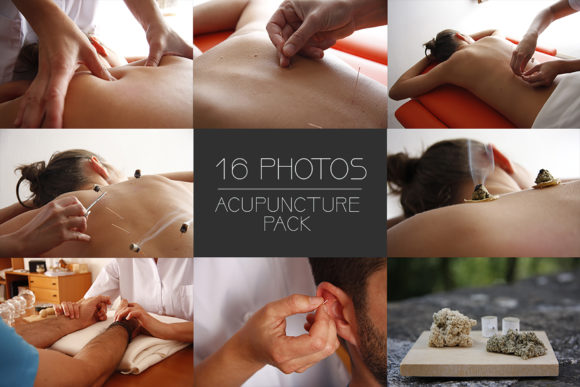 Print on Demand: Acupuncture Session X16 Pack Graphic Health By SmartDesigns