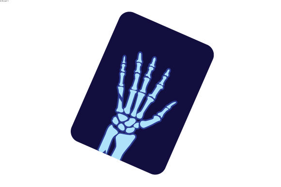 X Ray of Broken Hand Designs & Drawings Craft Cut File By Creative Fabrica Crafts