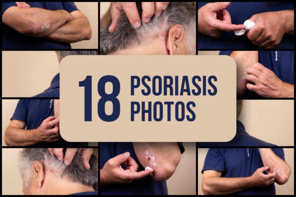 Set of 18 Psoriasis Photos Graphic Health By lunarts